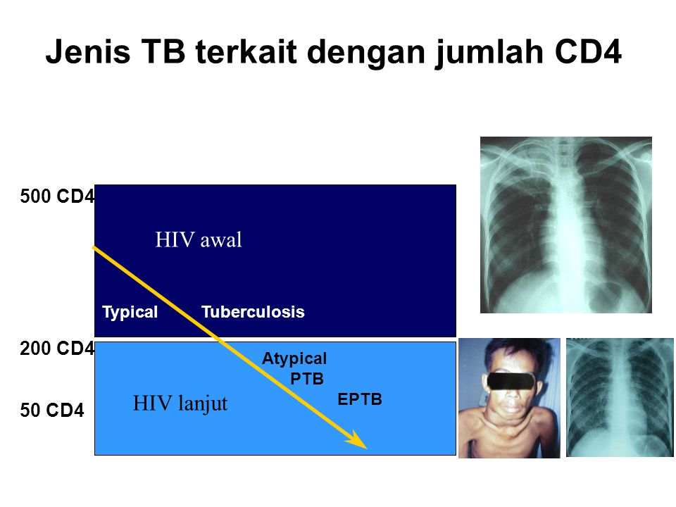 Jenis TB terkait dengan jumlah CD4