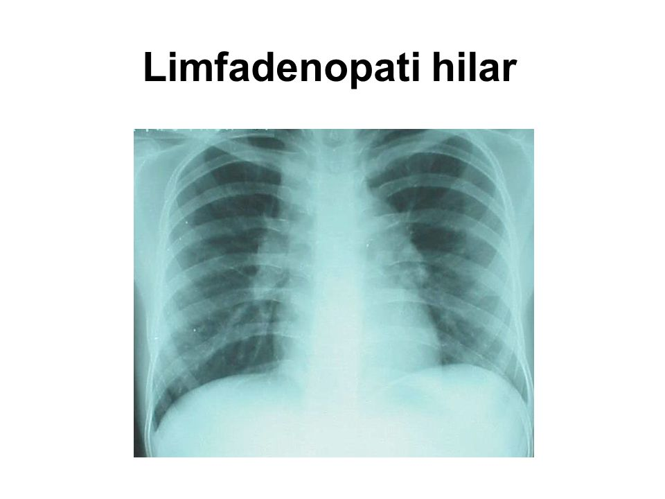 Limfadenopati hilar