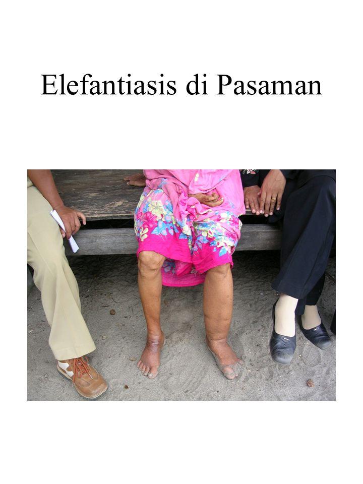 Elefantiasis di Pasaman