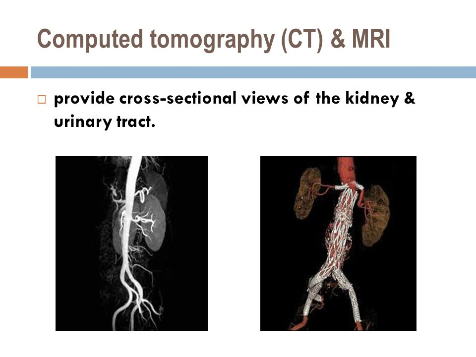Computed tomography (CT) & MRI