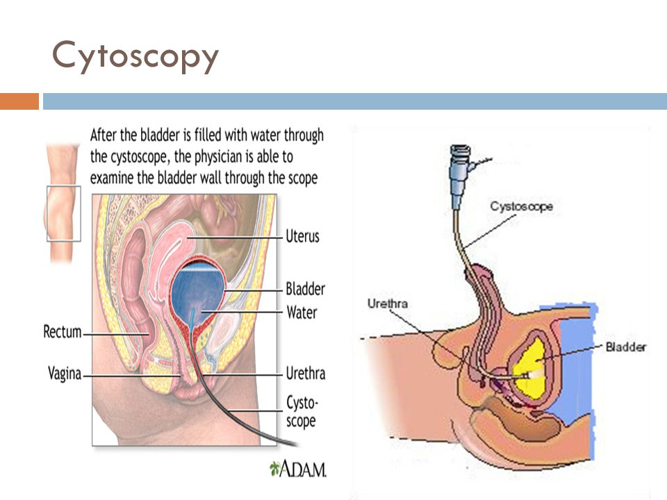 Cytoscopy