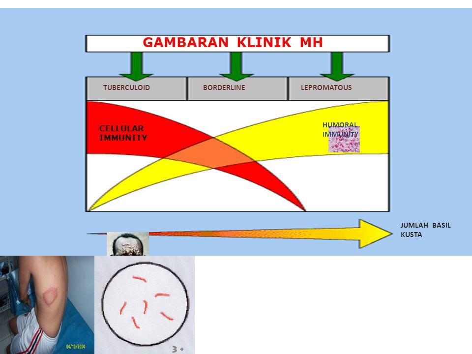 GAMBARAN KLINIK MH TUBERCULOID BORDERLINE LEPROMATOUS HUMORAL IMMUNITY