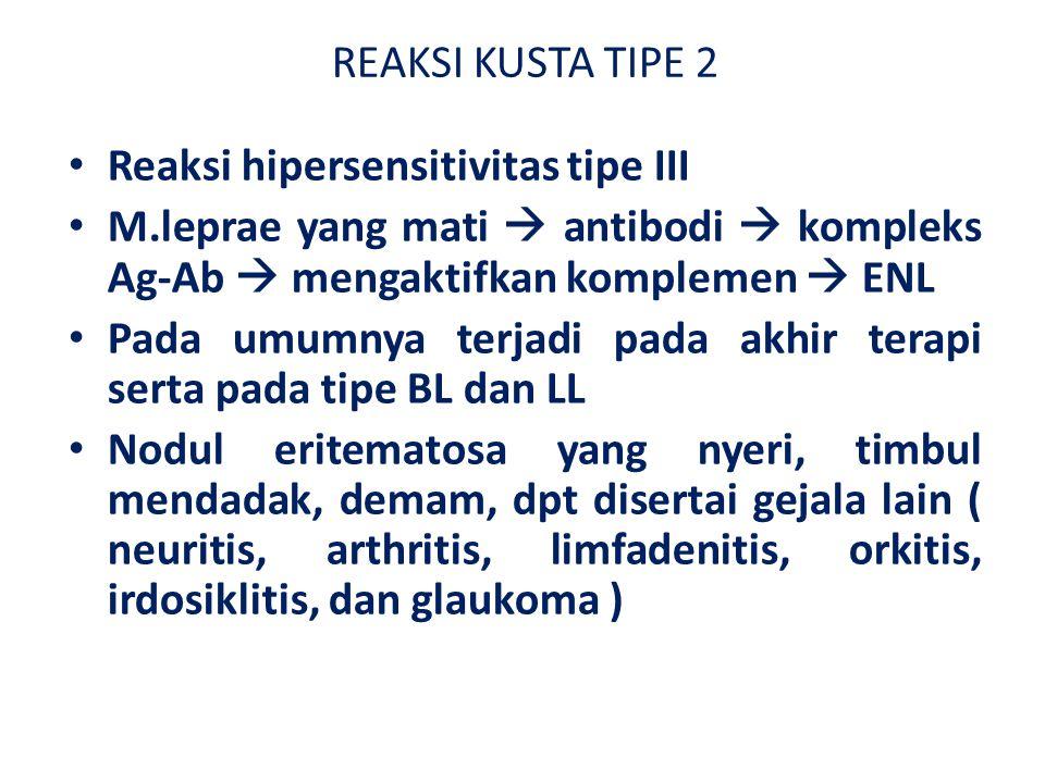 REAKSI KUSTA TIPE 2 Reaksi hipersensitivitas tipe III. M.leprae yang mati  antibodi  kompleks Ag-Ab  mengaktifkan komplemen  ENL.