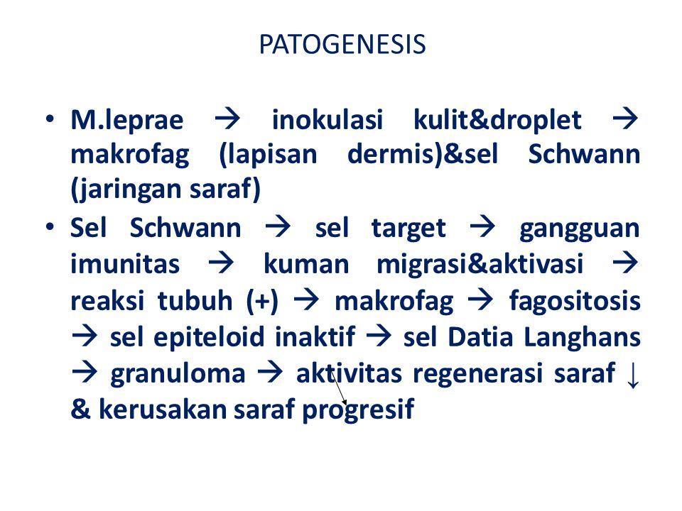 PATOGENESIS M.leprae  inokulasi kulit&droplet  makrofag (lapisan dermis)&sel Schwann (jaringan saraf)