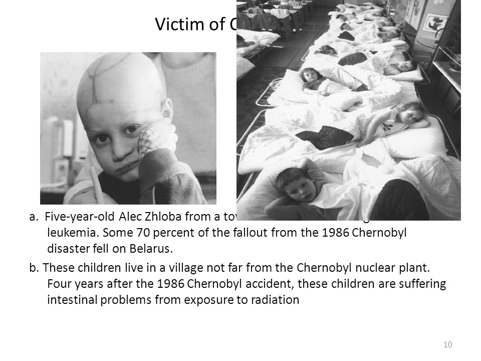 Victim of Chernobyl