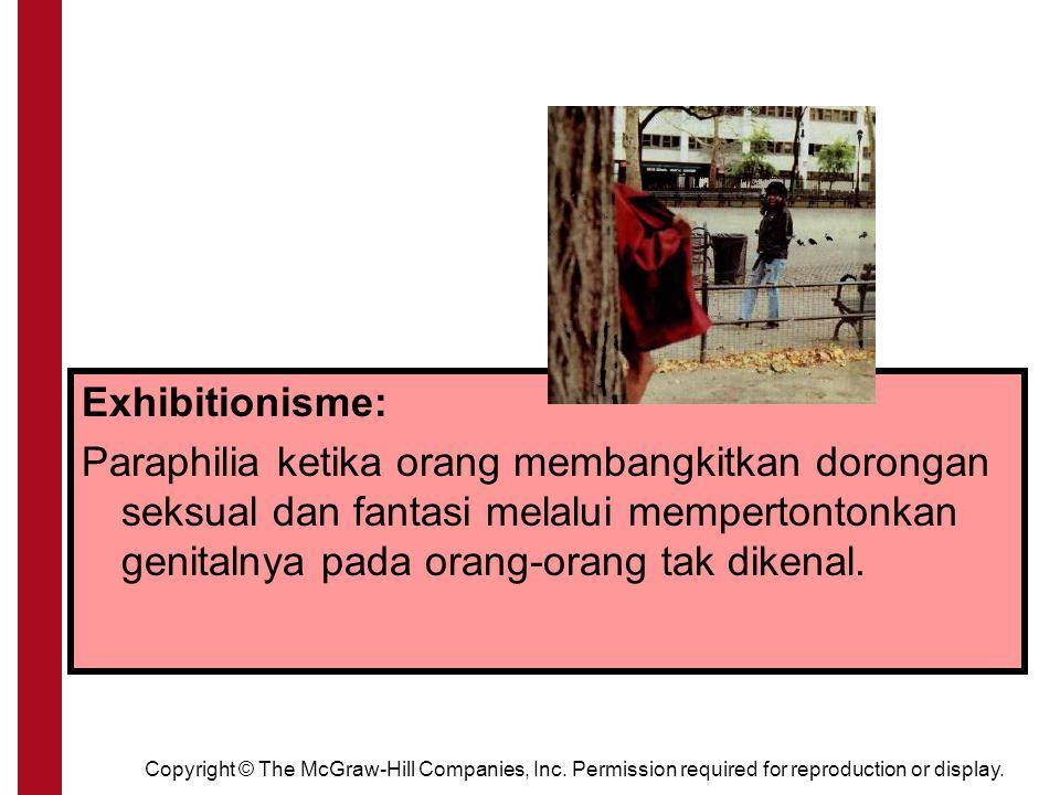Exhibitionism Exhibitionisme: