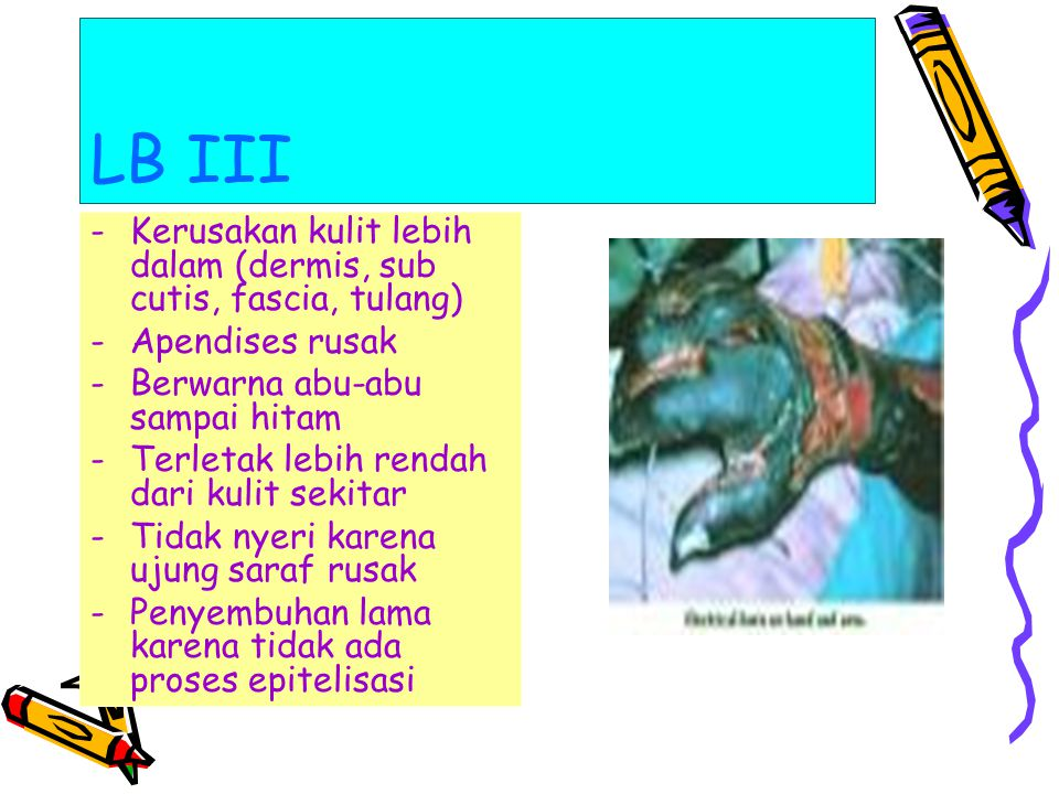 LB III Kerusakan kulit lebih dalam (dermis, sub cutis, fascia, tulang)