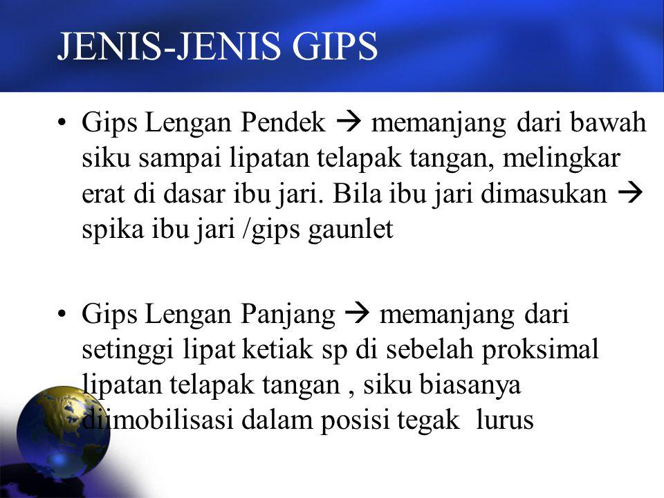 JENIS-JENIS GIPS