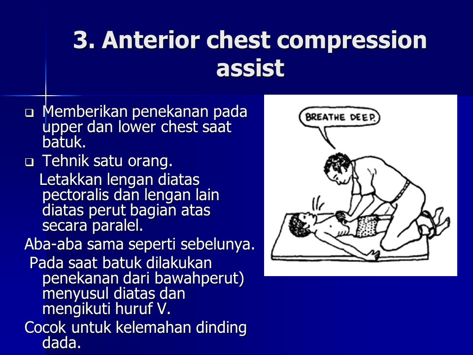 3. Anterior chest compression assist