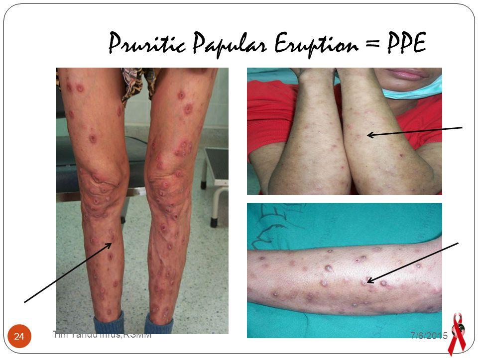Pruritic Papular Eruption = PPE