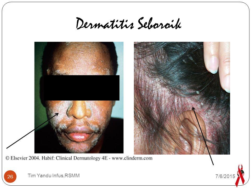 Dermatitis Seboroik Tim Yandu Infus,RSMM 4/17/2017