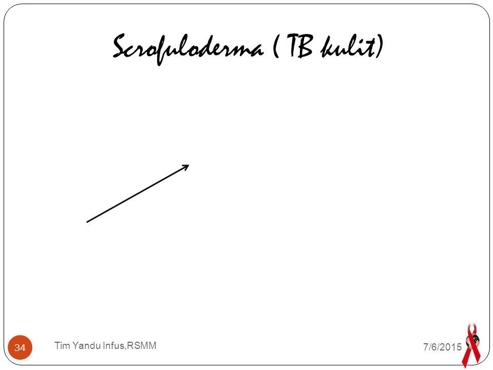 Scrofuloderma ( TB kulit)