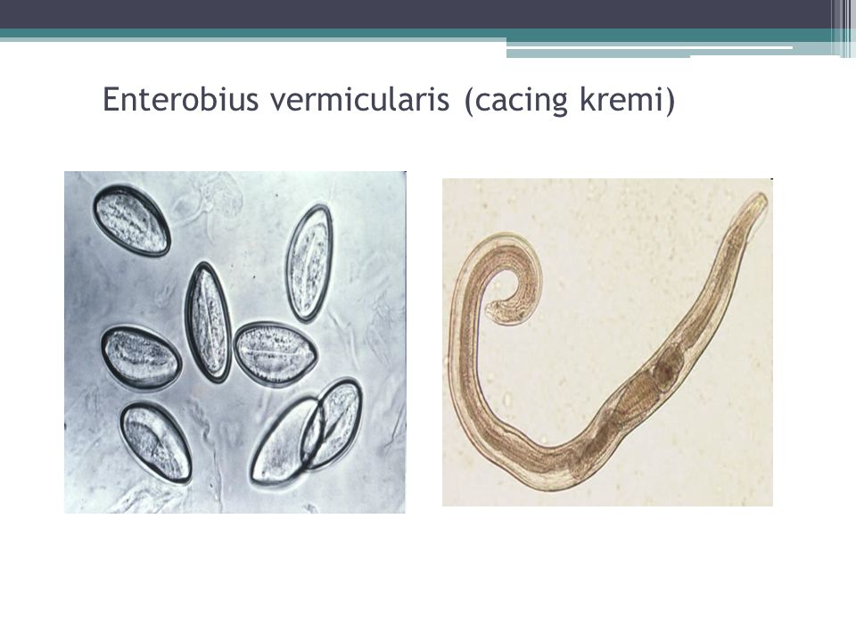 Enterobius vermicularis (cacing kremi)
