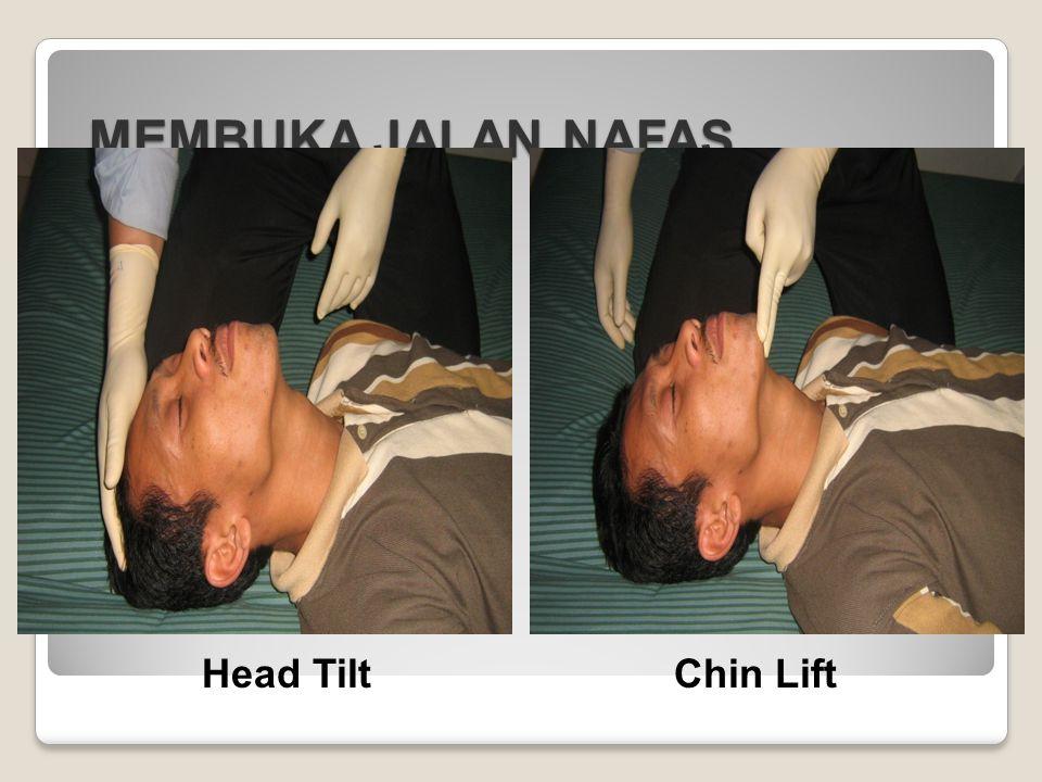 MEMBUKA JALAN NAFAS Head Tilt Chin Lift