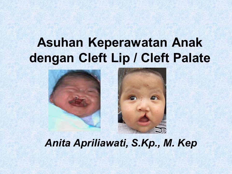 Asuhan Keperawatan Anak dengan Cleft Lip / Cleft Palate