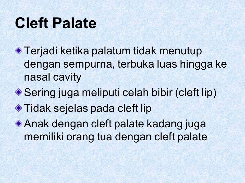 Cleft Palate Terjadi ketika palatum tidak menutup dengan sempurna, terbuka luas hingga ke nasal cavity.