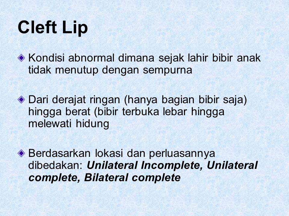 Cleft Lip Kondisi abnormal dimana sejak lahir bibir anak tidak menutup dengan sempurna.