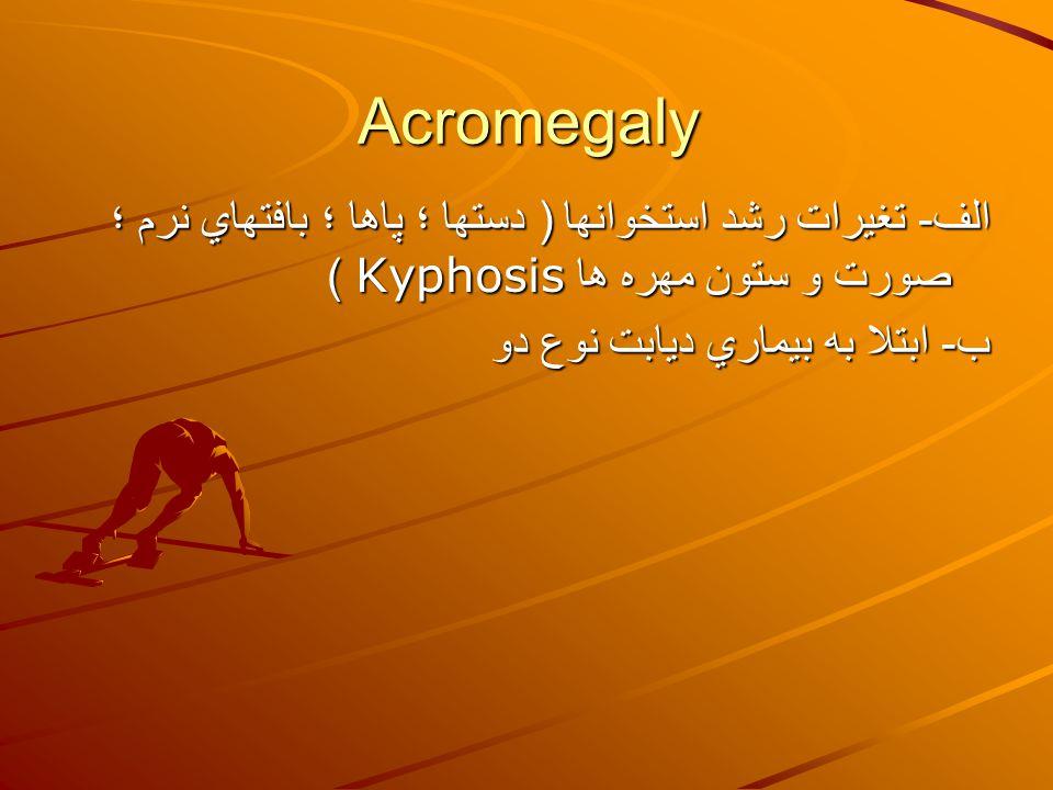 Acromegaly الف- تغيرات رشد استخوانها ( دستها ؛ پاها ؛ بافتهاي نرم ؛ صورت و ستون مهره ها Kyphosis ) ب- ابتلا به بيماري ديابت نوع دو.