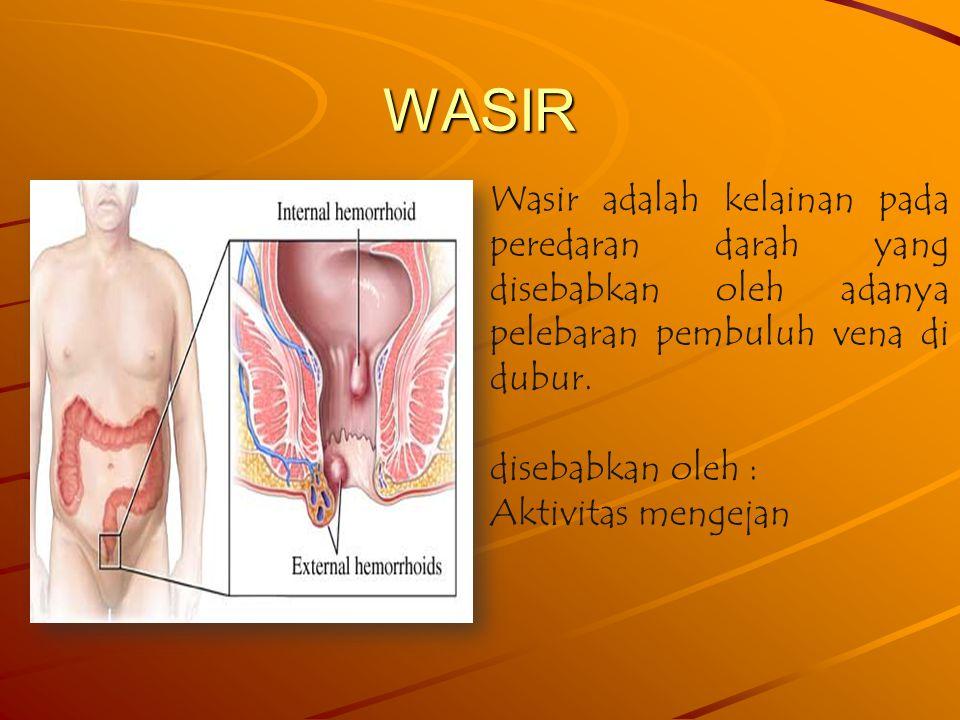 WASIR Wasir adalah kelainan pada peredaran darah yang disebabkan oleh adanya pelebaran pembuluh vena di dubur.