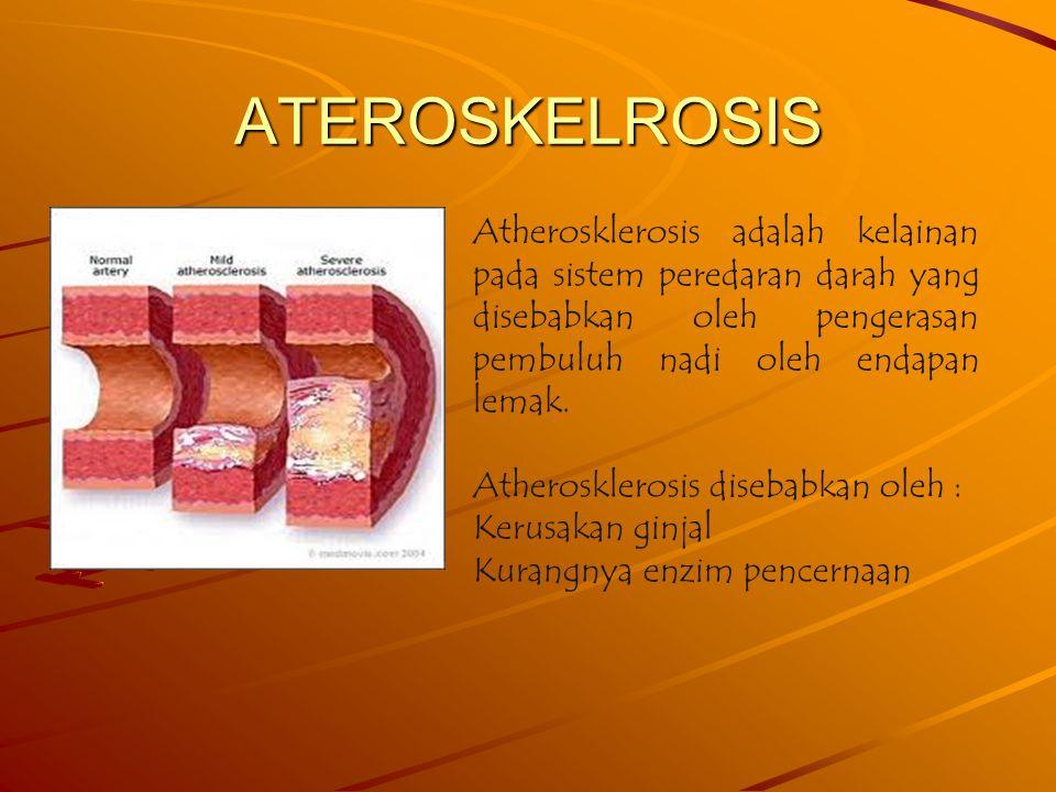 ATEROSKELROSIS Atherosklerosis adalah kelainan pada sistem peredaran darah yang disebabkan oleh pengerasan pembuluh nadi oleh endapan lemak.