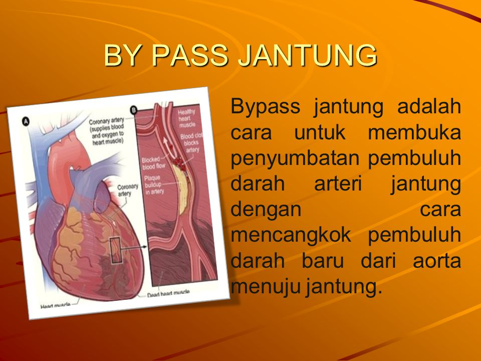 BY PASS JANTUNG