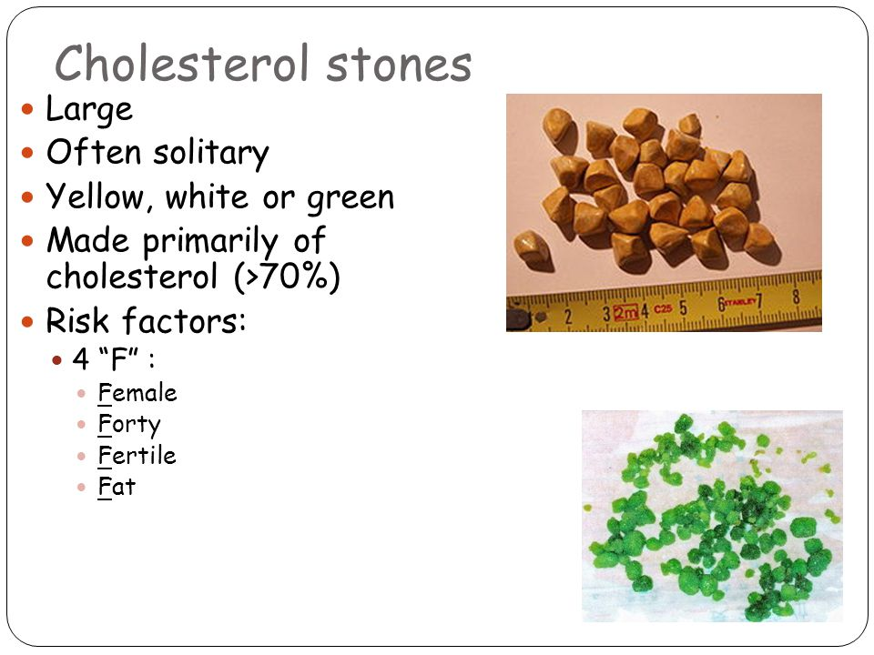 Cholesterol stones Large Often solitary Yellow, white or green