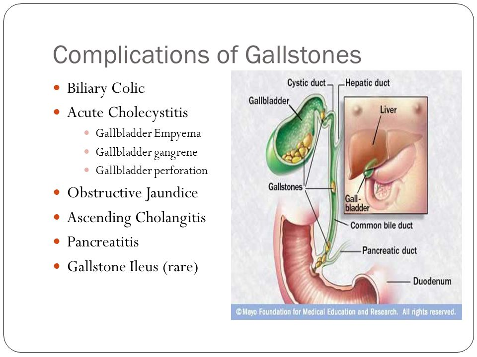 Complications of Gallstones