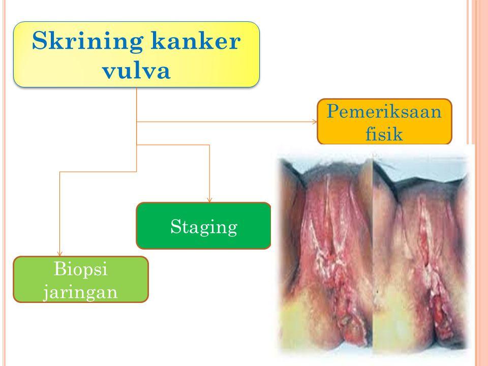 Skrining kanker vulva Pemeriksaan fisik Staging Biopsi jaringan