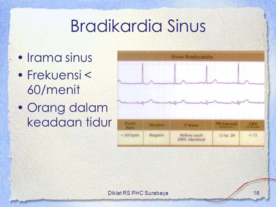 Bradikardia Sinus Irama sinus Frekuensi < 60/menit