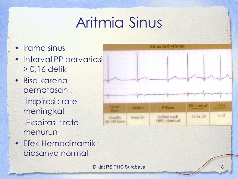 Aritmia Sinus Irama sinus Interval PP bervariasi > 0,16 detik