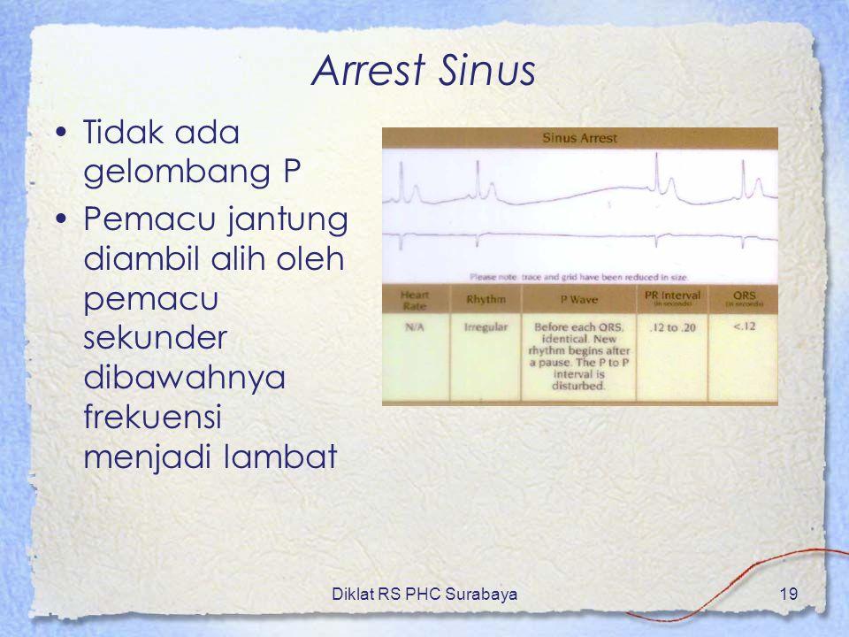 Arrest Sinus Tidak ada gelombang P