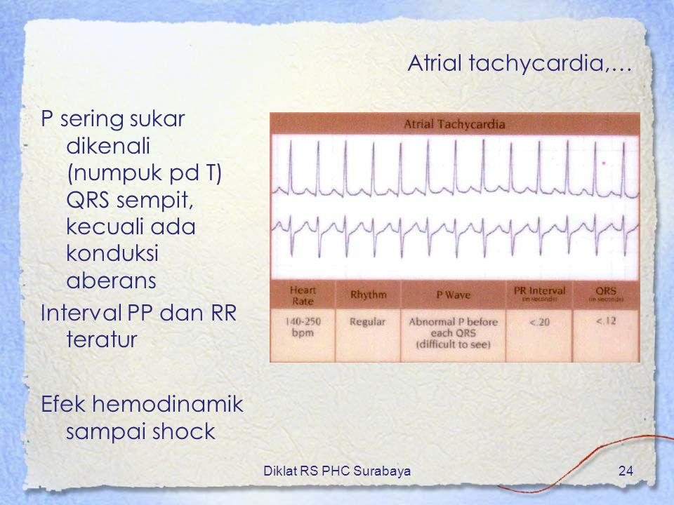 Atrial tachycardia,…