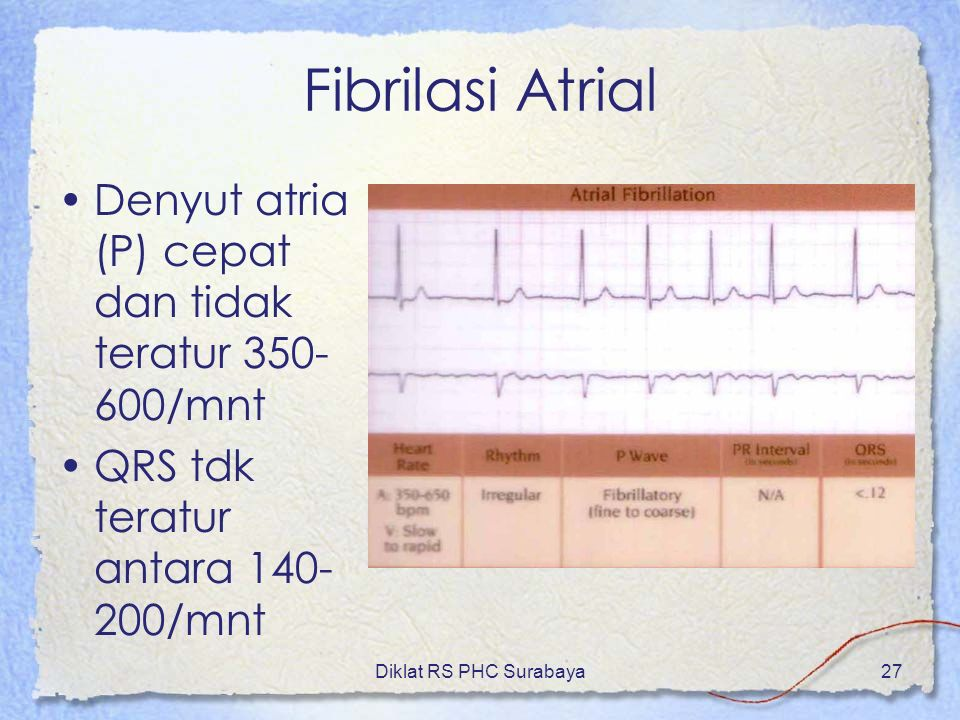 Fibrilasi Atrial Denyut atria (P) cepat dan tidak teratur 350-600/mnt