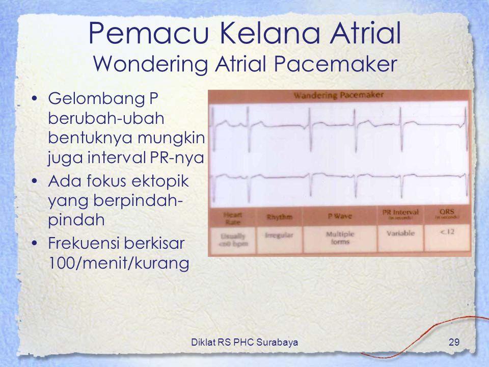 Pemacu Kelana Atrial Wondering Atrial Pacemaker