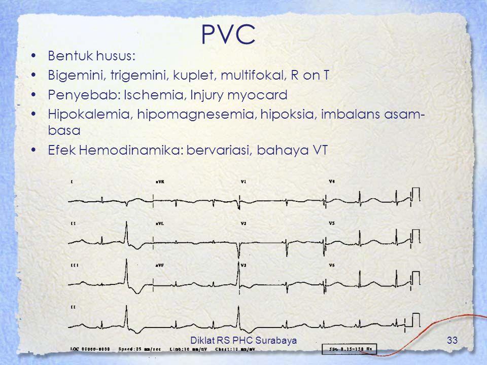 PVC Bentuk husus: Bigemini, trigemini, kuplet, multifokal, R on T