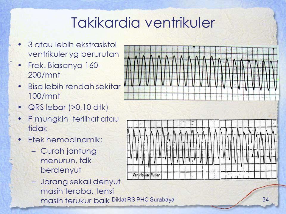 Takikardia ventrikuler