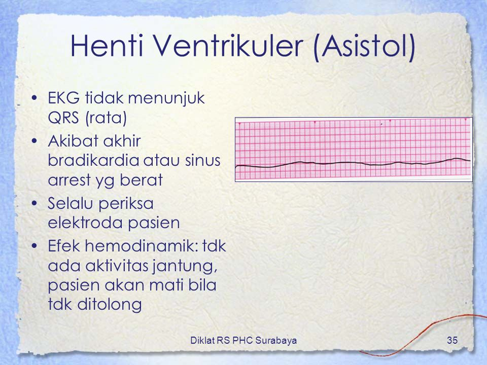 Henti Ventrikuler (Asistol)