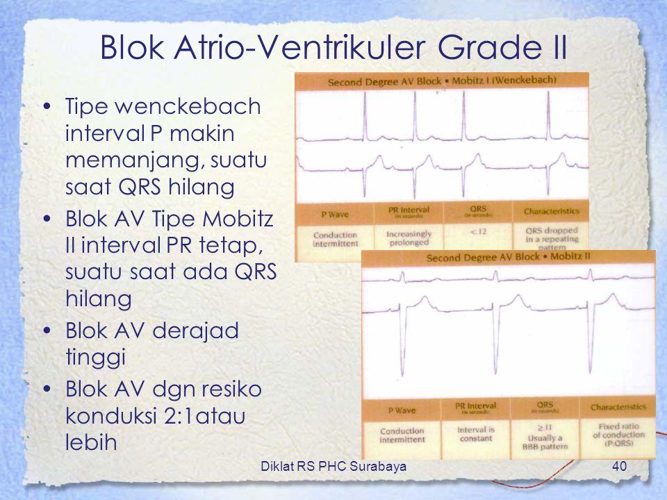 Blok Atrio-Ventrikuler Grade II