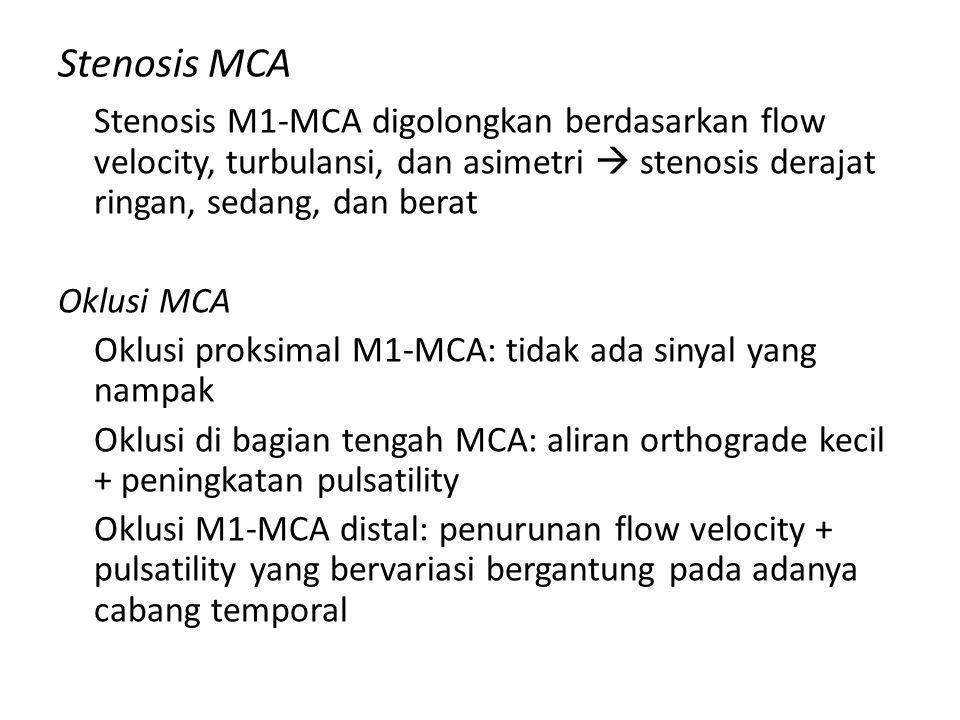 Stenosis MCA