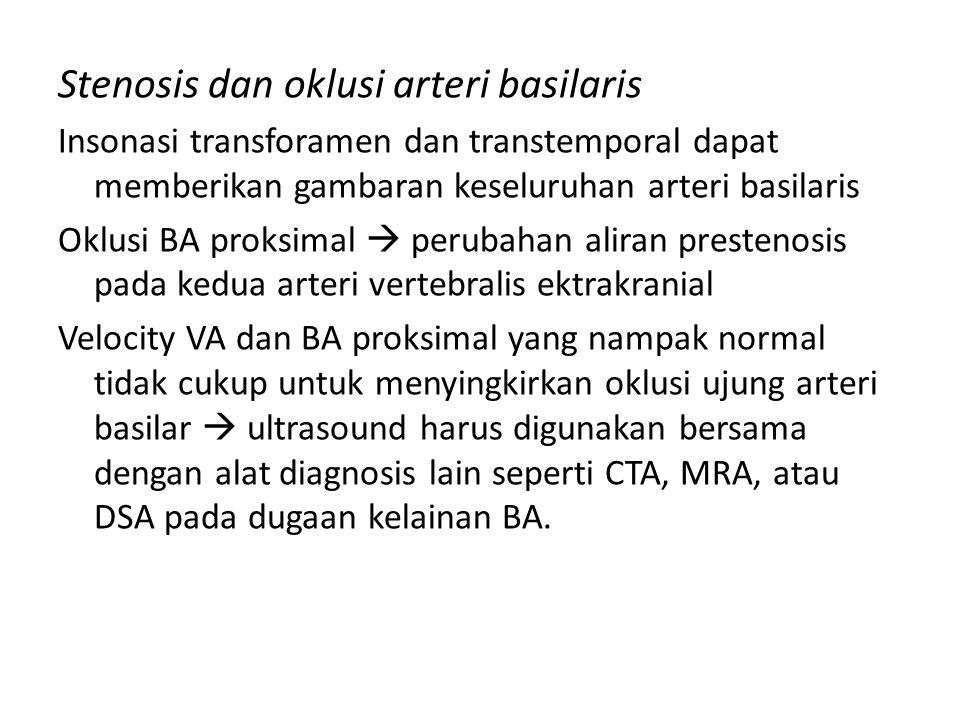 Stenosis dan oklusi arteri basilaris