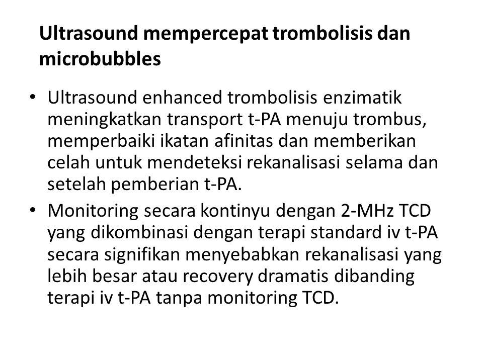 Ultrasound mempercepat trombolisis dan microbubbles