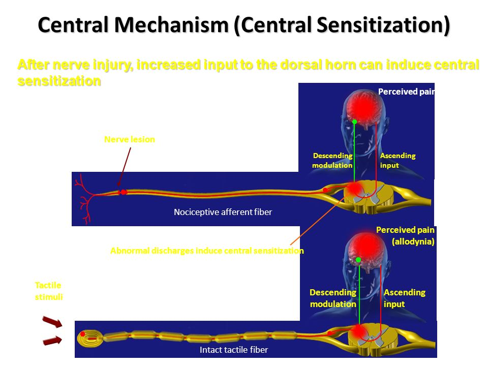 Central Mechanism (Central Sensitization)
