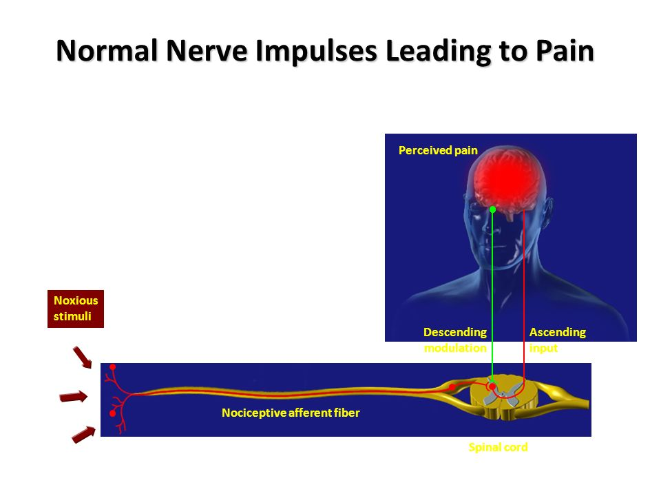 Normal Nerve Impulses Leading to Pain