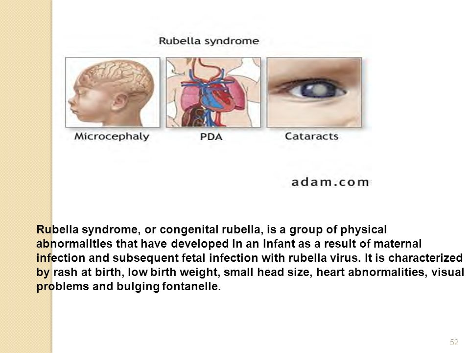Rubella syndrome, or congenital rubella, is a group of physical abnormalities that have developed in an infant as a result of maternal infection and subsequent fetal infection with rubella virus.