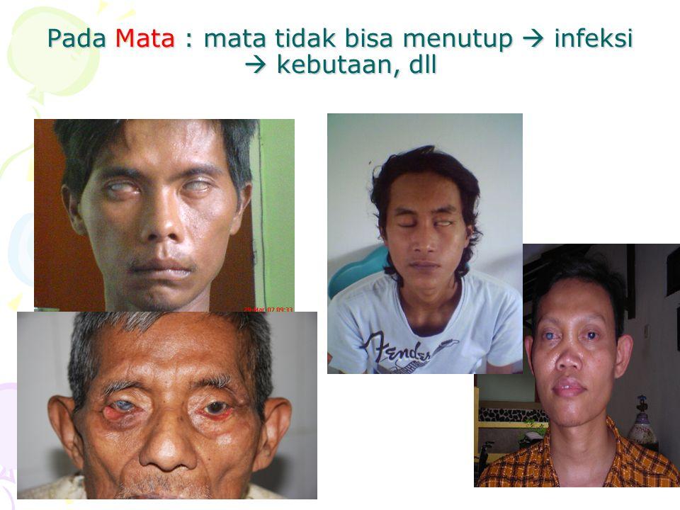Pada Mata : mata tidak bisa menutup  infeksi  kebutaan, dll