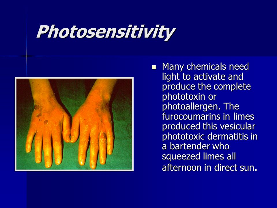 Photosensitivity