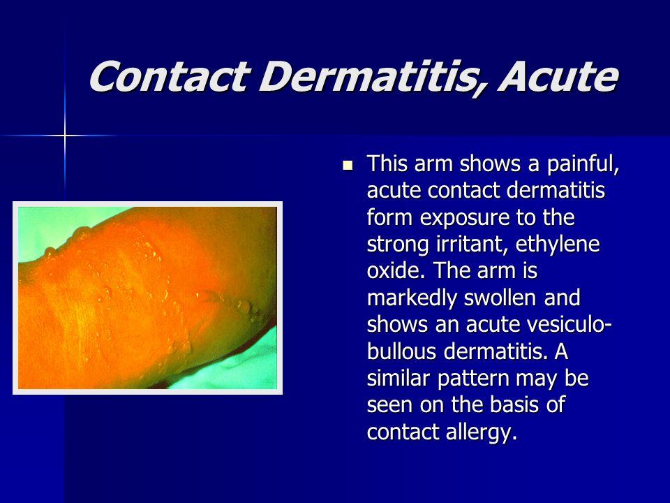 Contact Dermatitis, Acute