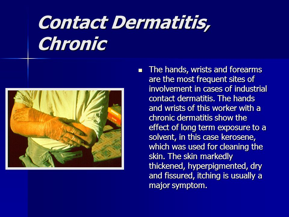 Contact Dermatitis, Chronic