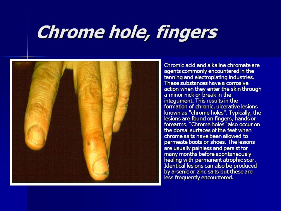 Chrome hole, fingers