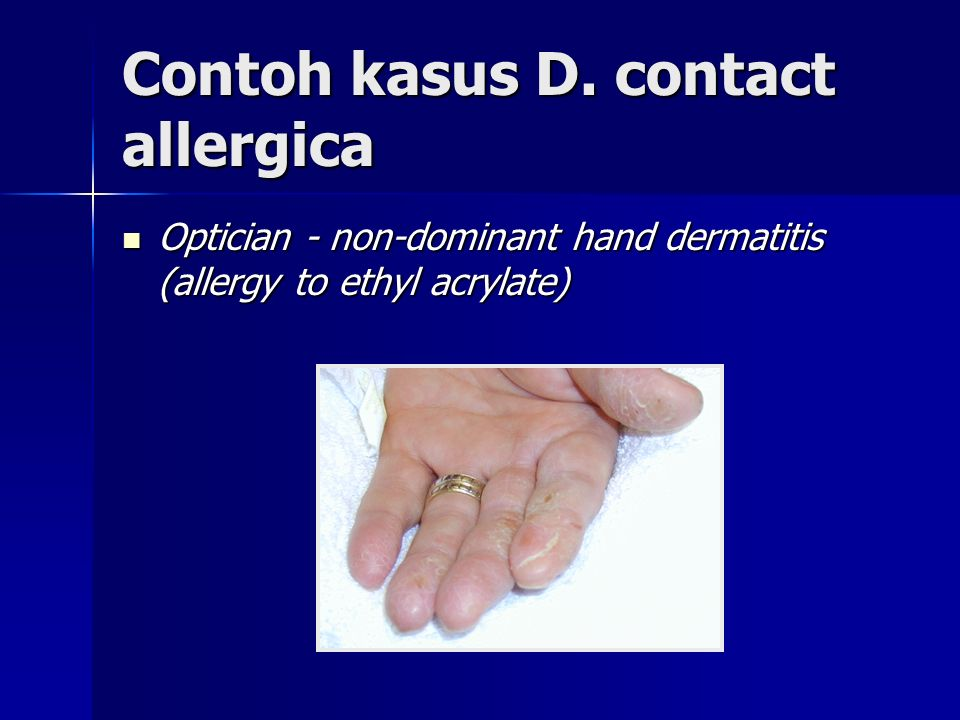 Contoh kasus D. contact allergica
